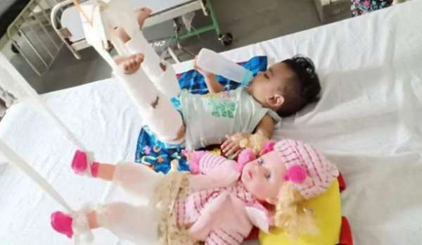 To Treat 11-Month-Old's Fracture, Doctors First Had To Plaster Her Doll