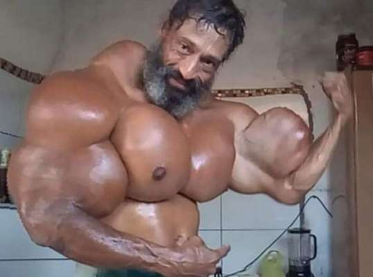 Brazilian Bodybuilder Uses Oil Injections To Boost His Muscles To Ridiculous Proportions