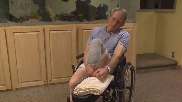 The Farmer Who Cut Off His Own Leg With A Pocket Knife